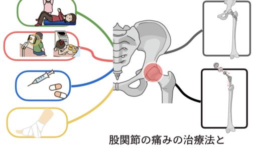 股関節の痛みに対する治療法とバレエレッスンに早く復帰する方法