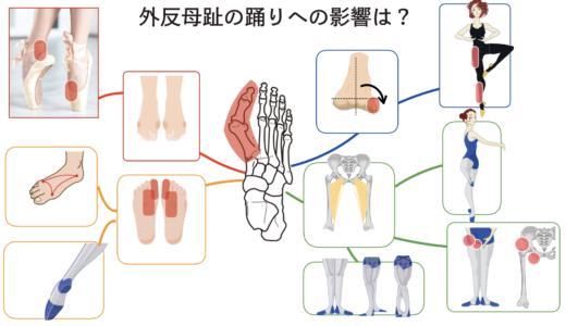外反母趾だとバレエ踊る時にどんな影響ある?4つの特徴